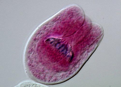 Tapeworm Echinococcus granulosus Hydatid Cyst | MicroscopyU