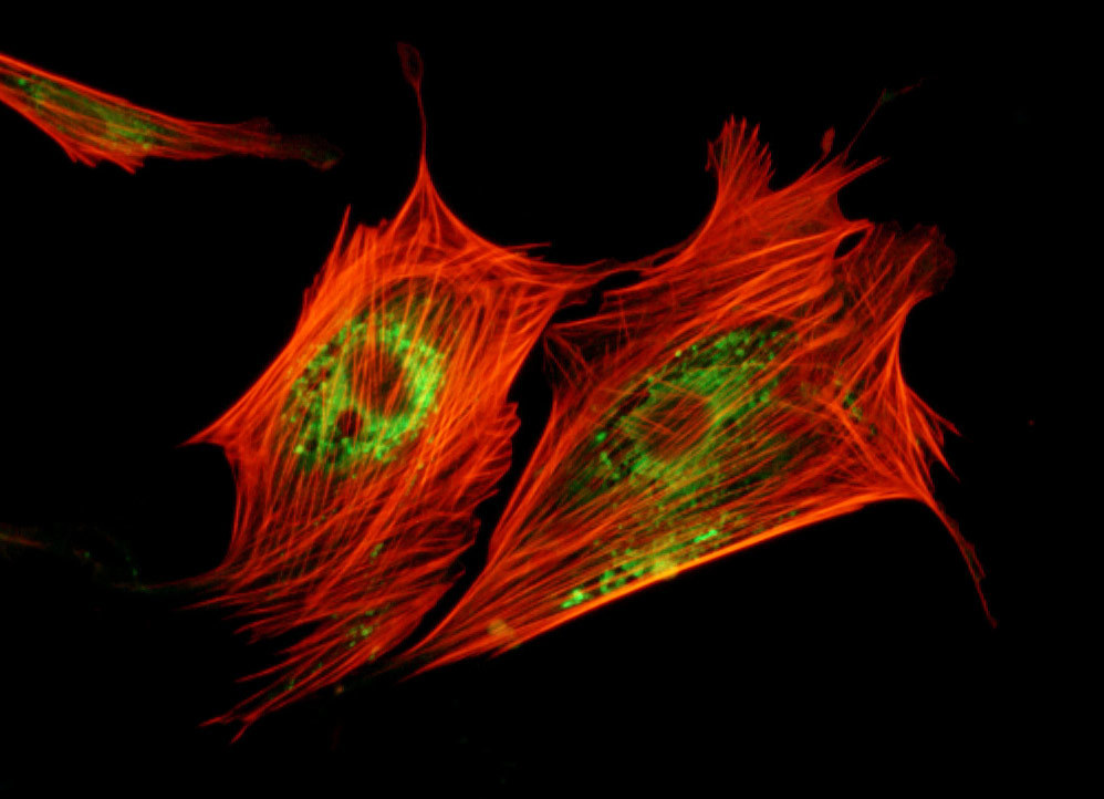 indian muntjac cell lysosomes and actin cytoskeleton
