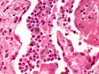 Human Pathology Microscopyu