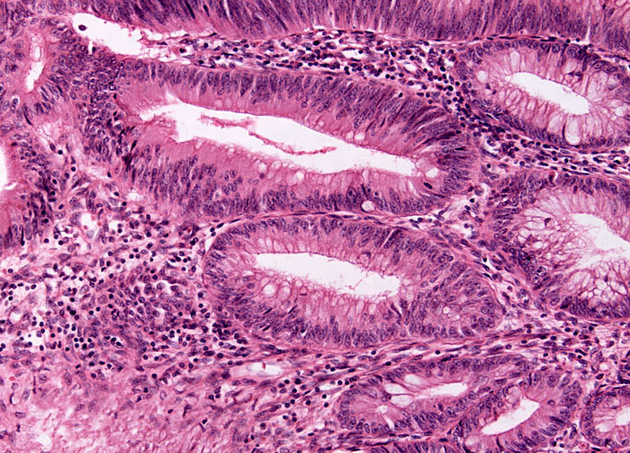 Colon Adenocarcinoma at 10x Magnification | MicroscopyU