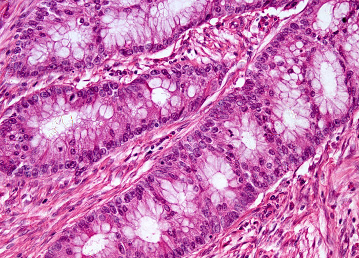 Colon Carcinoma at 20x Magnification | MicroscopyU