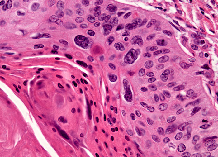 Laryngeal Squamous Cell Carcinoma at 10x Magnification ...