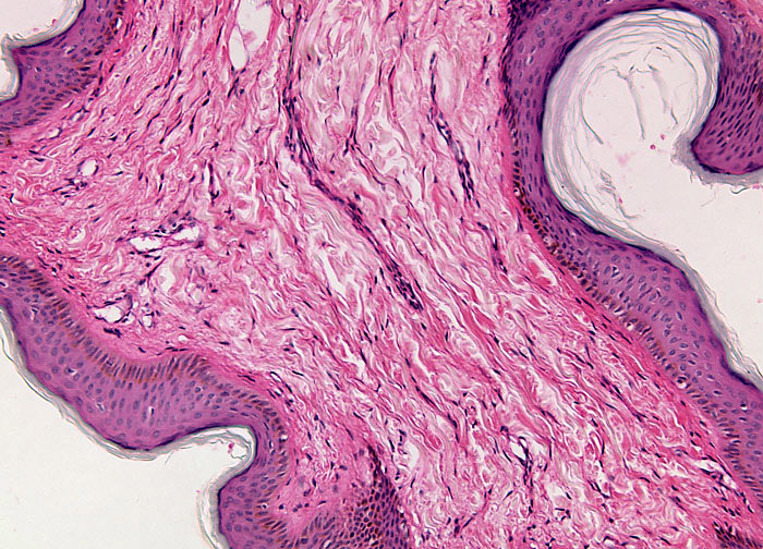 Cell papilloma of skin, Genital Warts HPV Introduction and Causes STD hpv sintomi uomo