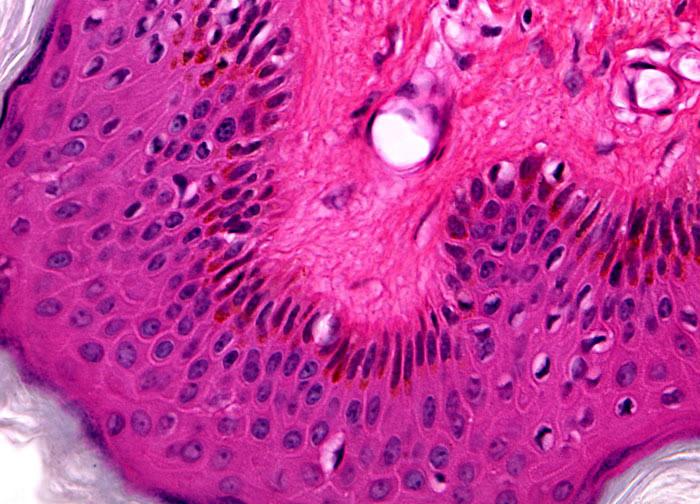 microscop papilom
