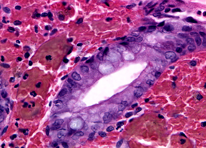 Ulcerative colitis at 40x magnification microscopyu for Mucus fishing syndrome