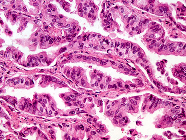 Human Pathology Nikon S Microscopyu